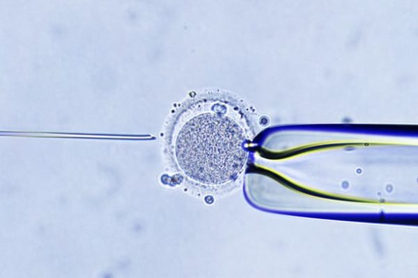 Az IVF hat módon változtatta meg a világot – Louise Brown-tól az őssejt-kutatásig